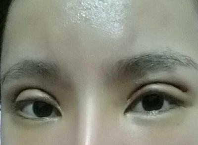 双眼皮手术后需要怎么护理?