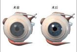 眼角膜移植手术图解