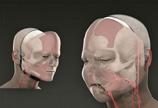 面部移植手术图解