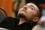 俄电脑工程师将接受首例头颅更换术
