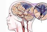 脑梗塞病理图
